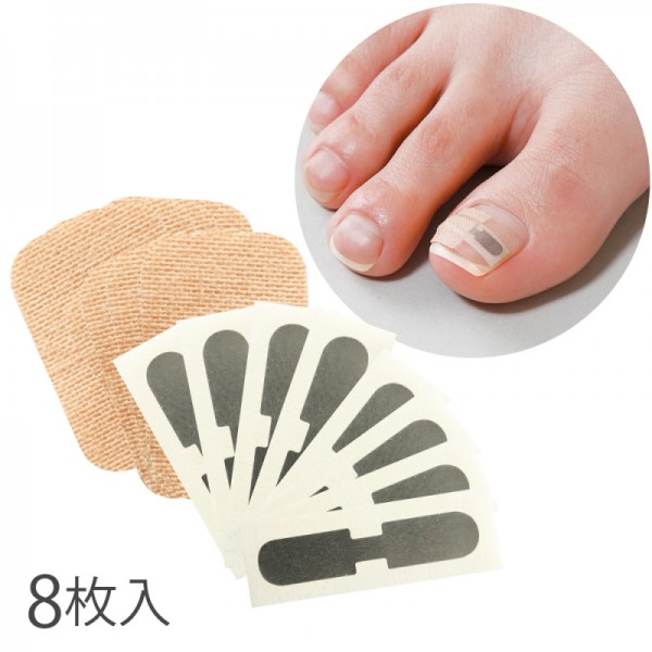 巻き爪 矯正  形状記憶 巻き爪シール